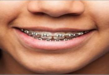 مرکز دندان پزشکی سینا